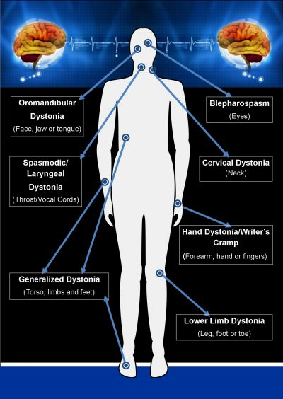 Types of Dystonia Diagram ADSG