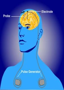 Deep Brain Stimulation DBS.