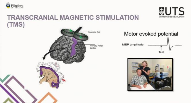 Professor Lynley's presentation Can non-invasive brain stimulation improve dystonia – Slides
