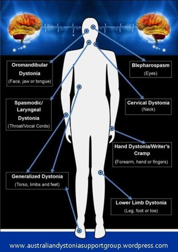 Types of Dystonia